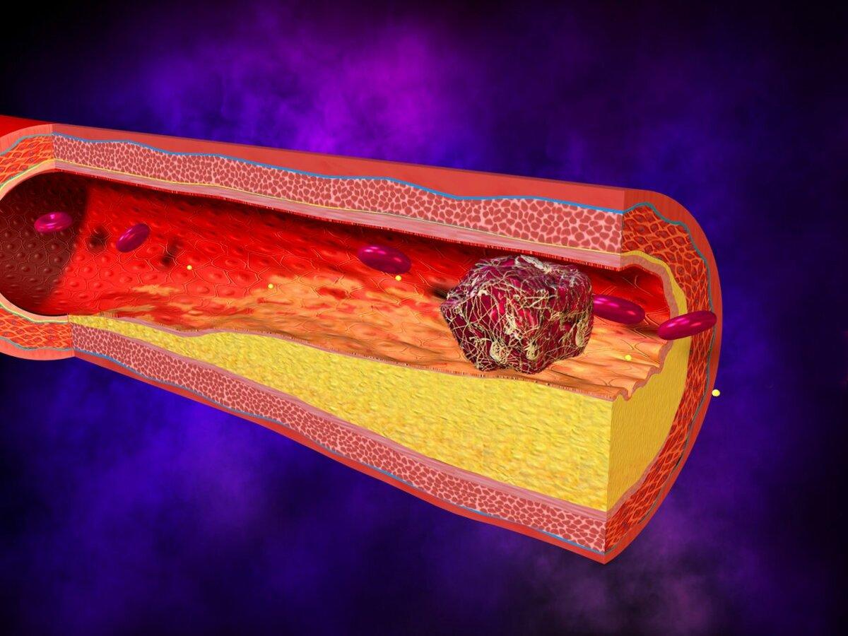 Як позбутися тромбів і уникнути інсульту?